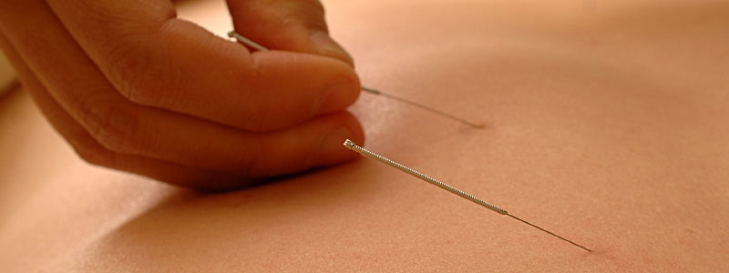 banner-acupuncture